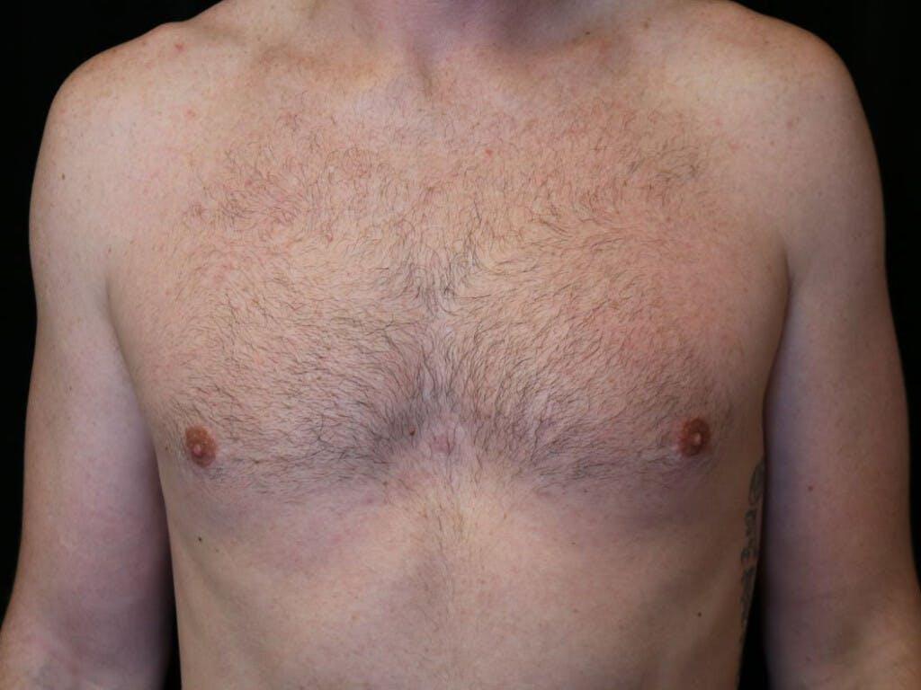 Gynecomastia Gallery - Patient 39352572 - Image 2
