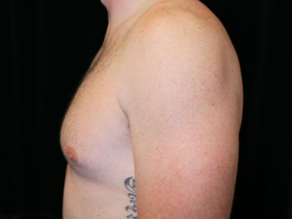 Gynecomastia Gallery - Patient 39352572 - Image 9