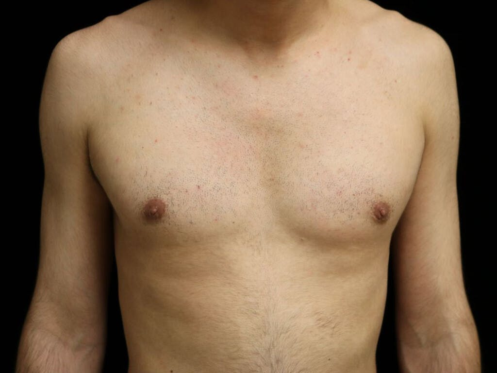 Gynecomastia Gallery - Patient 39352574 - Image 2