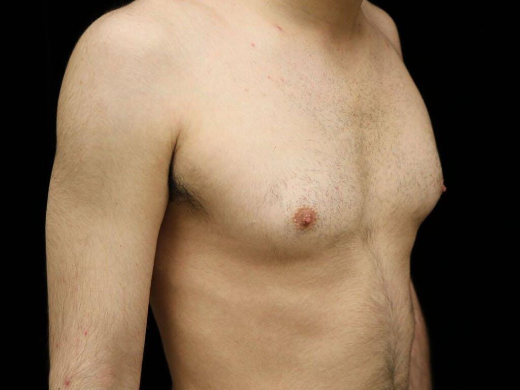 Gynecomastia Gallery - Patient 39352574 - Image 3