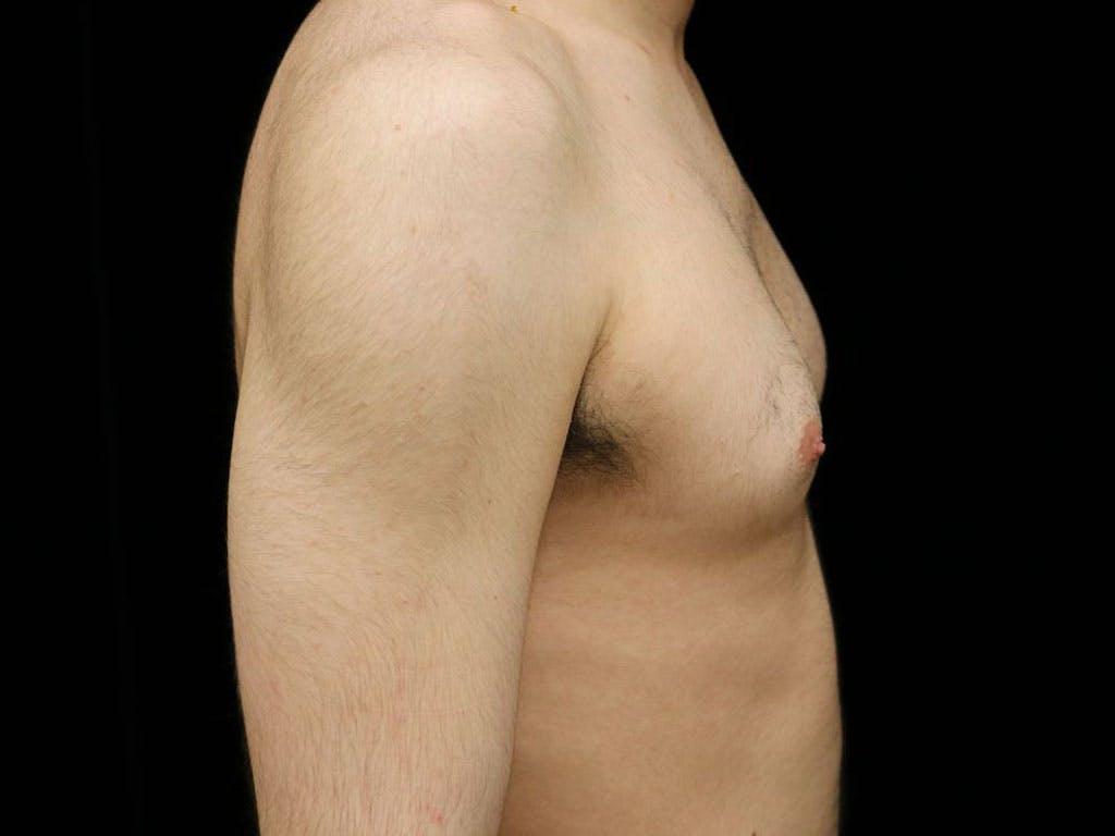 Gynecomastia Gallery - Patient 39352574 - Image 5