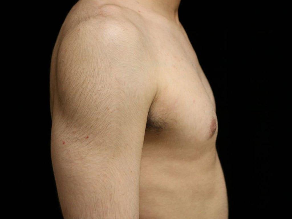 Gynecomastia Gallery - Patient 39352574 - Image 6