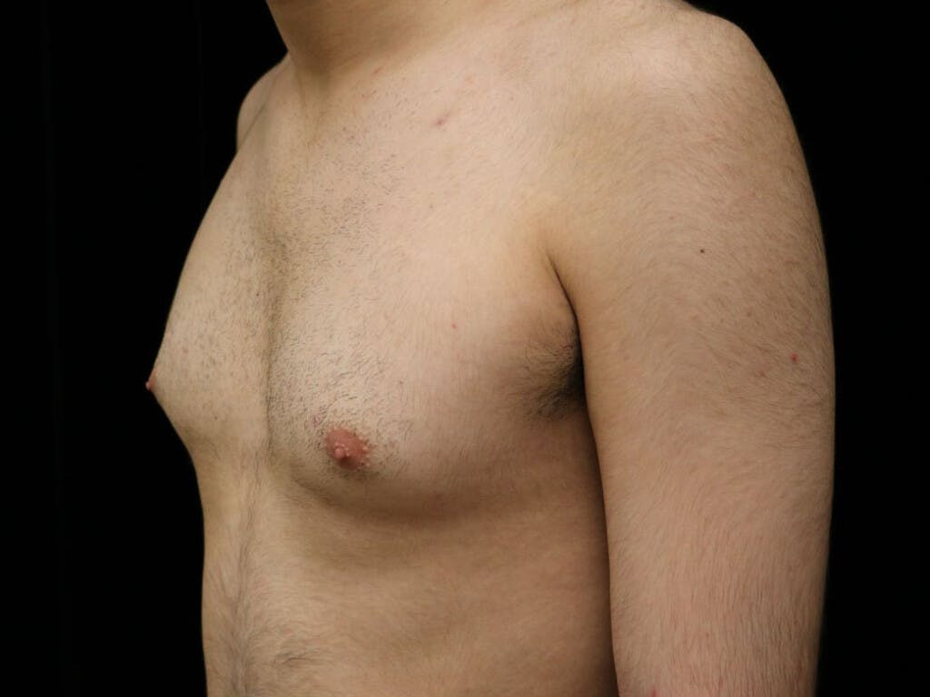 Gynecomastia Gallery - Patient 39352574 - Image 7