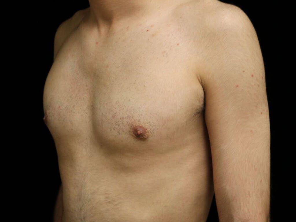 Gynecomastia Gallery - Patient 39352574 - Image 8