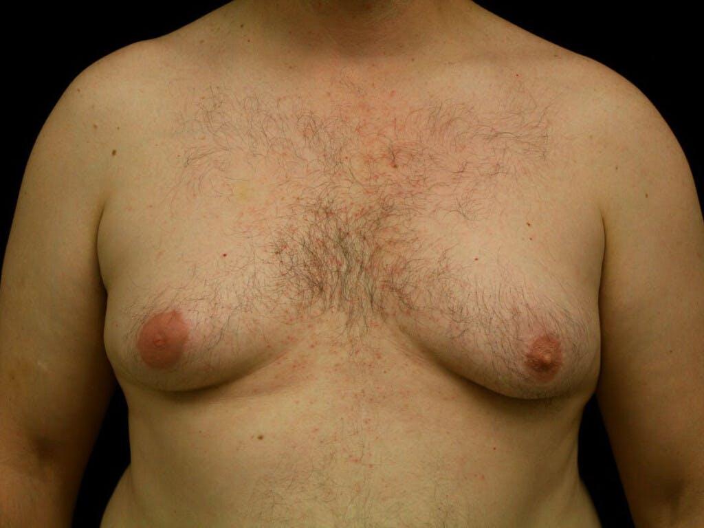 Gynecomastia Gallery - Patient 39352576 - Image 1