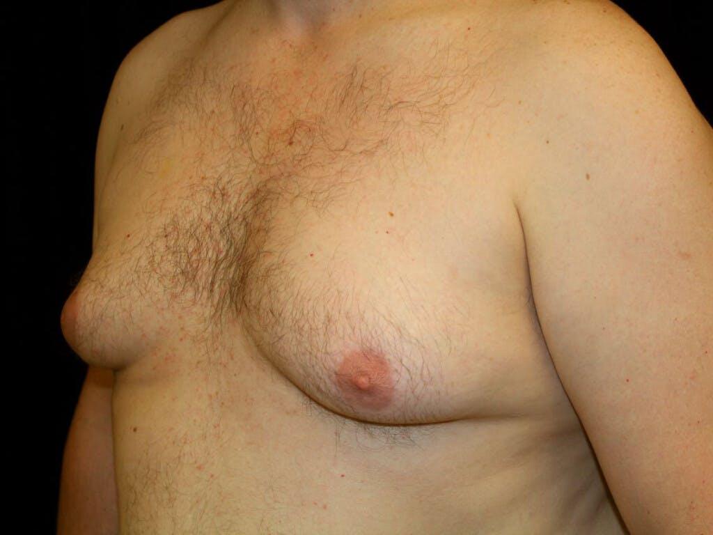 Gynecomastia Gallery - Patient 39352576 - Image 3
