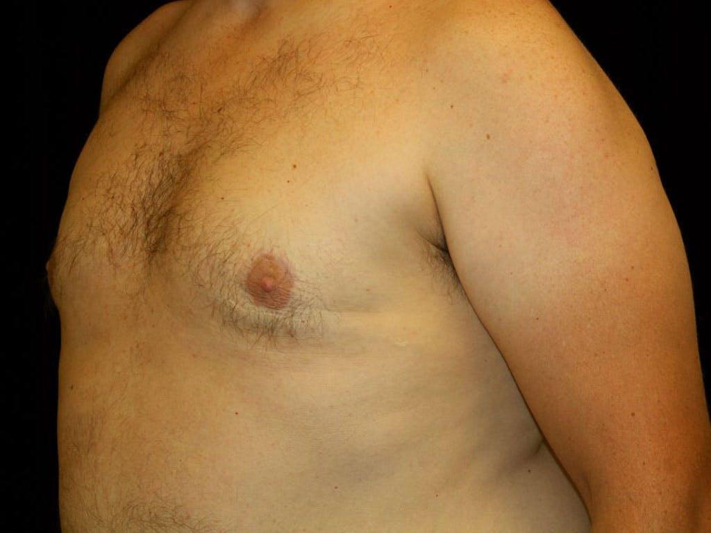 Gynecomastia Gallery - Patient 39352576 - Image 4