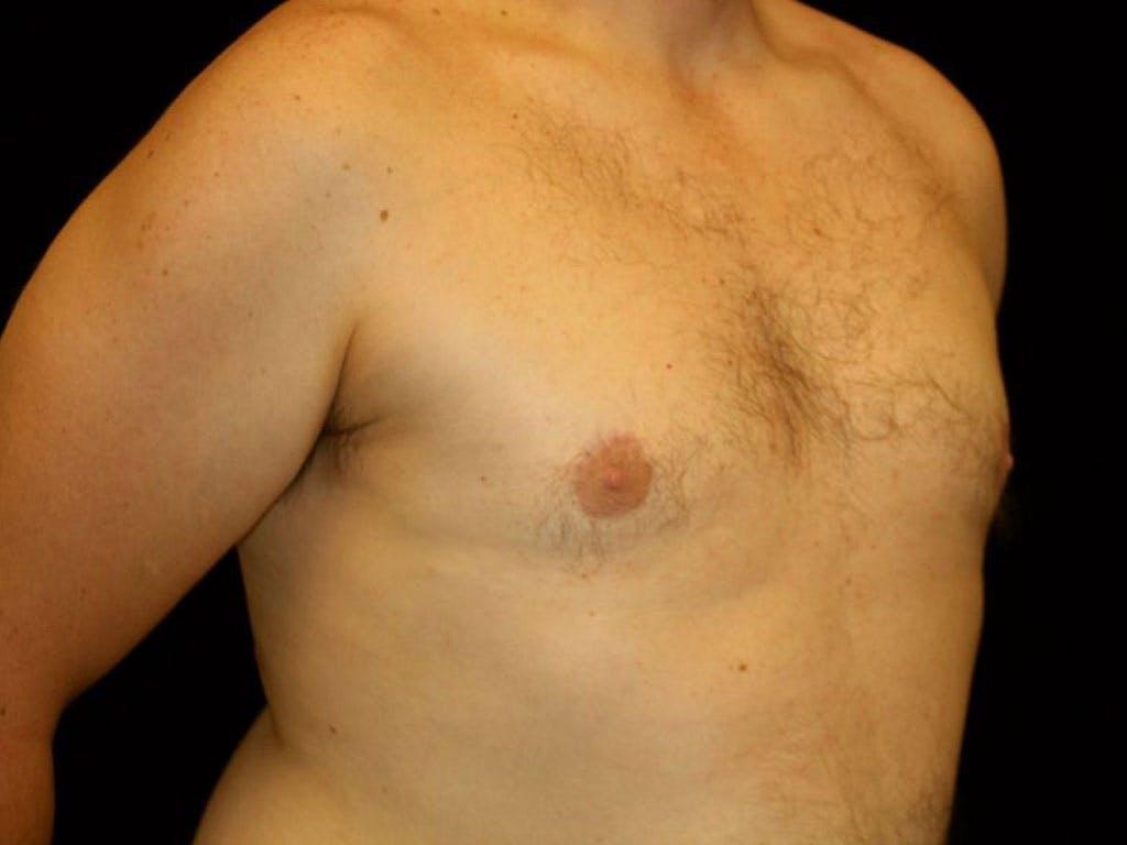 Gynecomastia Gallery - Patient 39352576 - Image 6