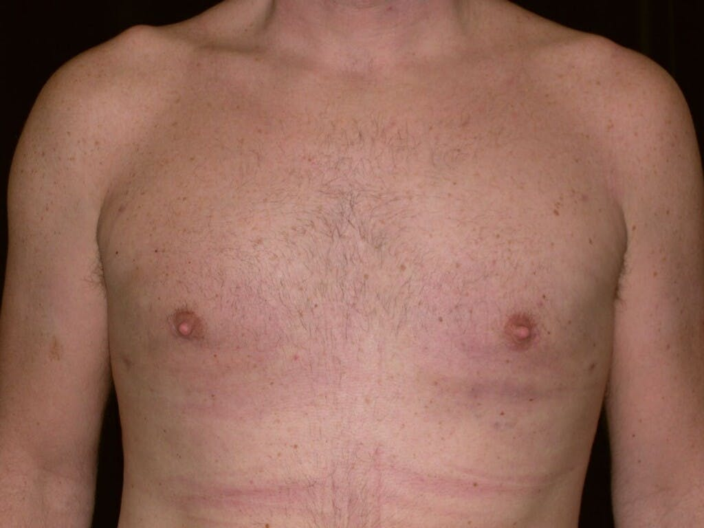 Gynecomastia Gallery - Patient 39352581 - Image 2