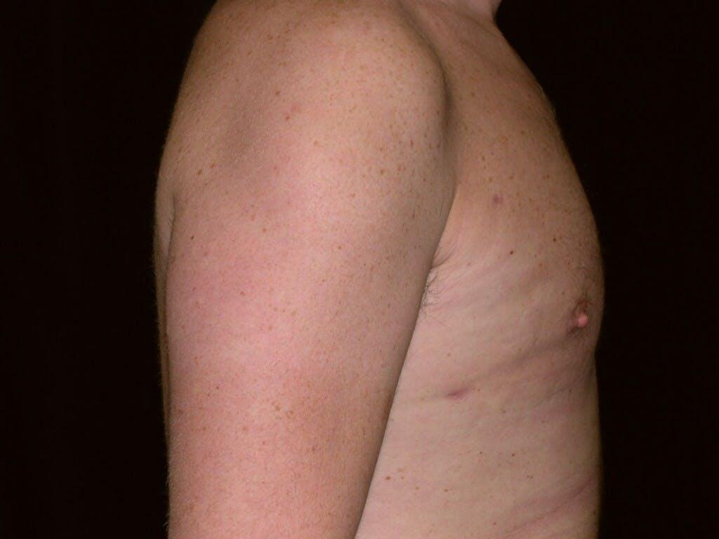Gynecomastia Gallery - Patient 39352581 - Image 4