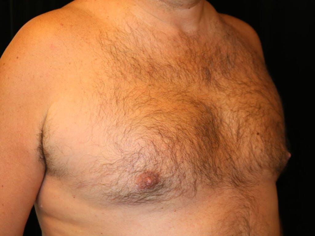 Gynecomastia Gallery - Patient 39352588 - Image 4