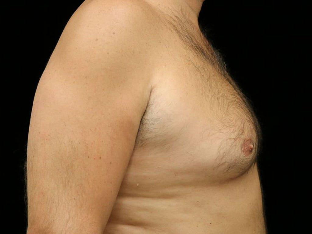 Gynecomastia Gallery - Patient 39352588 - Image 5