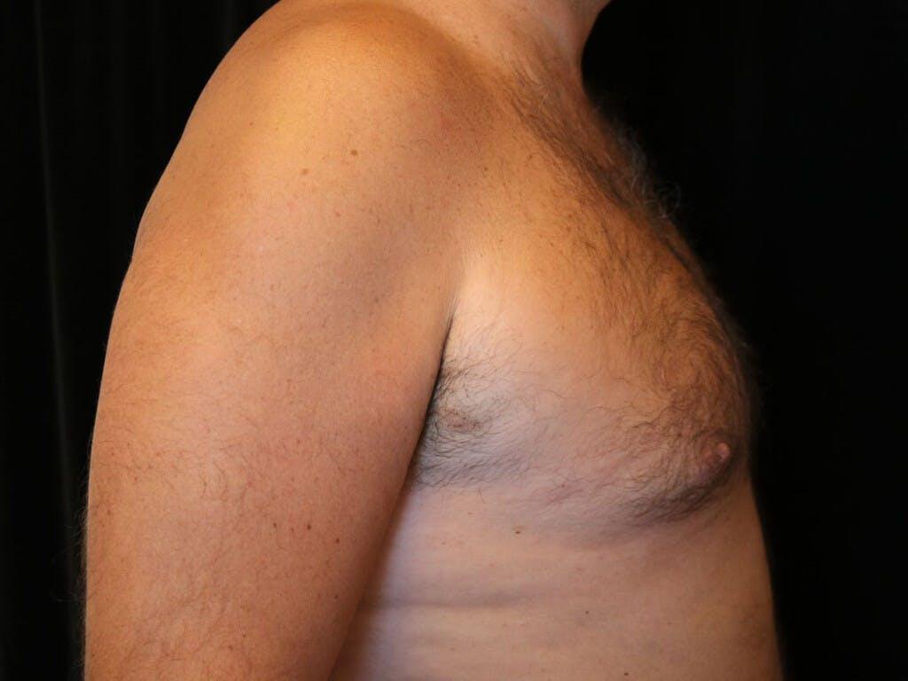 Gynecomastia Gallery - Patient 39352588 - Image 6