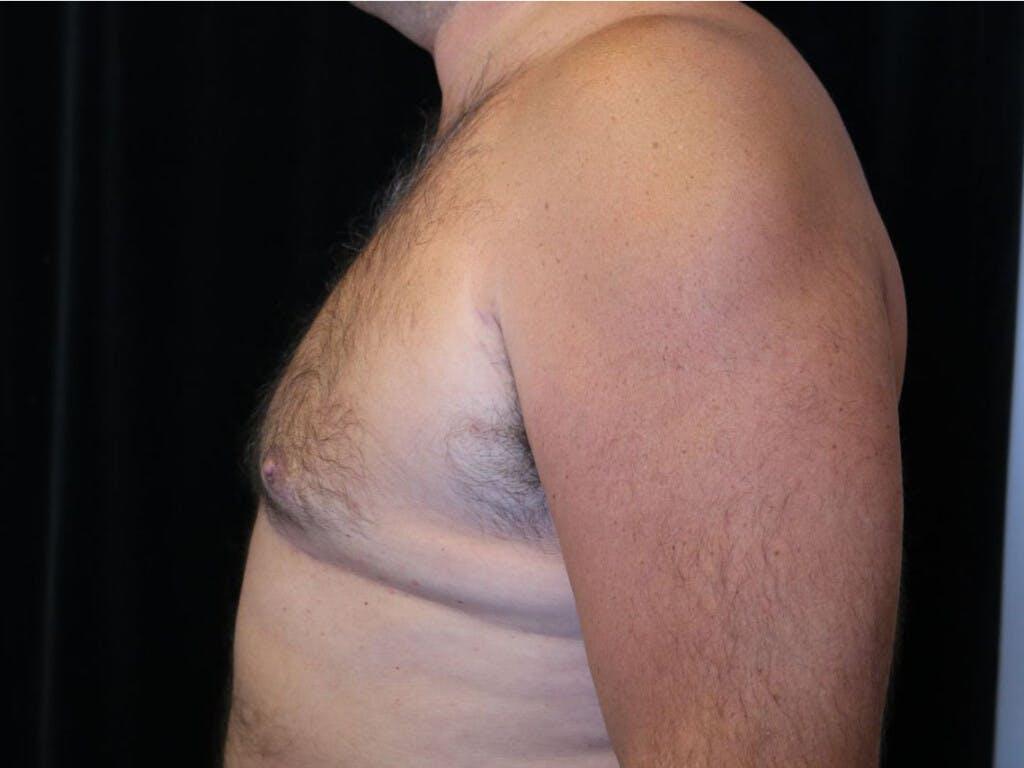 Gynecomastia Gallery - Patient 39352588 - Image 10