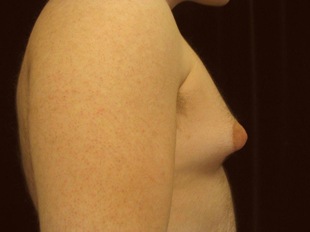 Gynecomastia Gallery - Patient 39352589 - Image 1