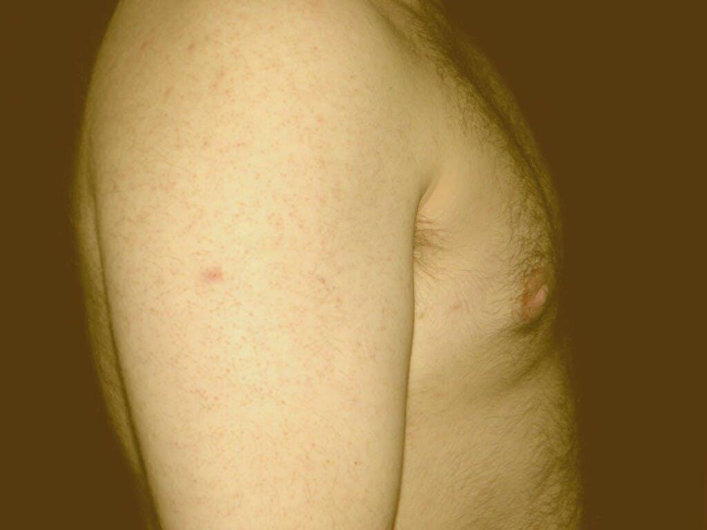 Gynecomastia Gallery - Patient 39352589 - Image 2