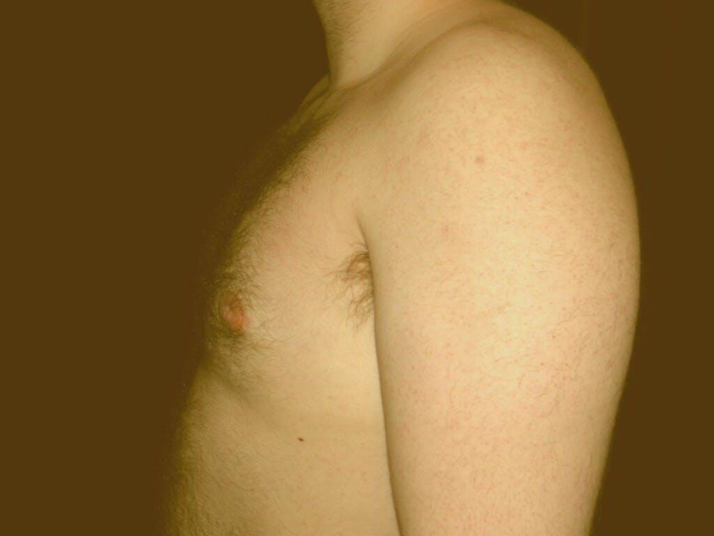 Gynecomastia Gallery - Patient 39352589 - Image 4