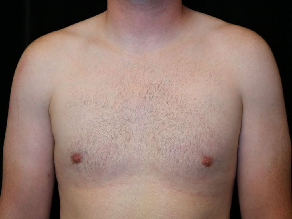 Gynecomastia Gallery - Patient 39352593 - Image 2
