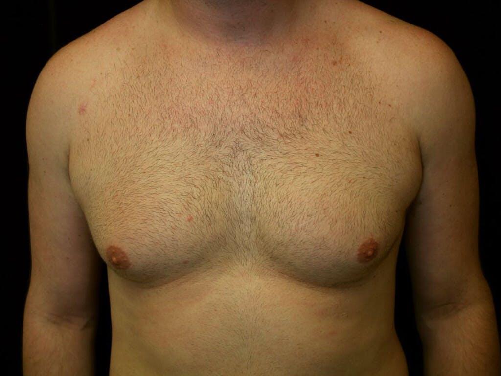 Gynecomastia Gallery - Patient 39352594 - Image 1
