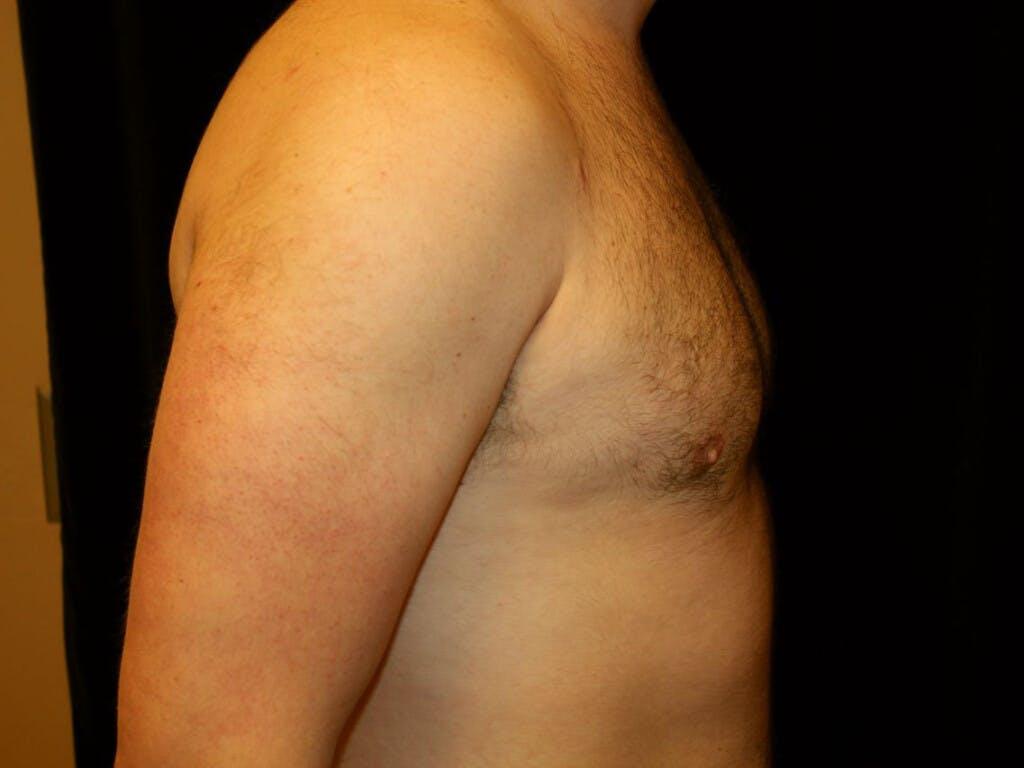 Gynecomastia Gallery - Patient 39352594 - Image 6