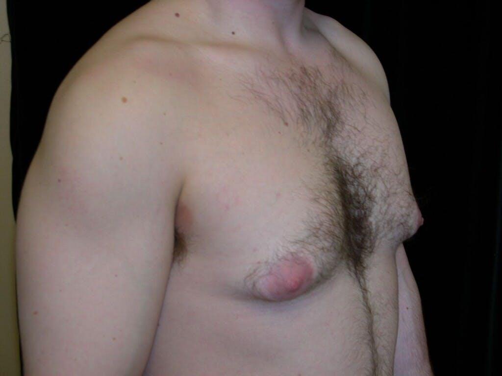 Gynecomastia Gallery - Patient 39352604 - Image 3