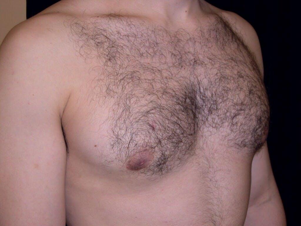 Gynecomastia Gallery - Patient 39352604 - Image 4