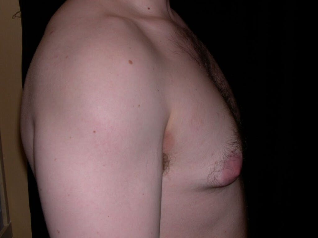 Gynecomastia Gallery - Patient 39352604 - Image 5