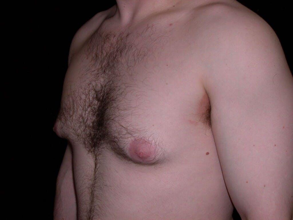 Gynecomastia Gallery - Patient 39352604 - Image 7