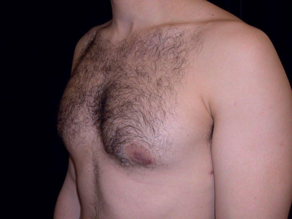 Gynecomastia Gallery - Patient 39352604 - Image 8