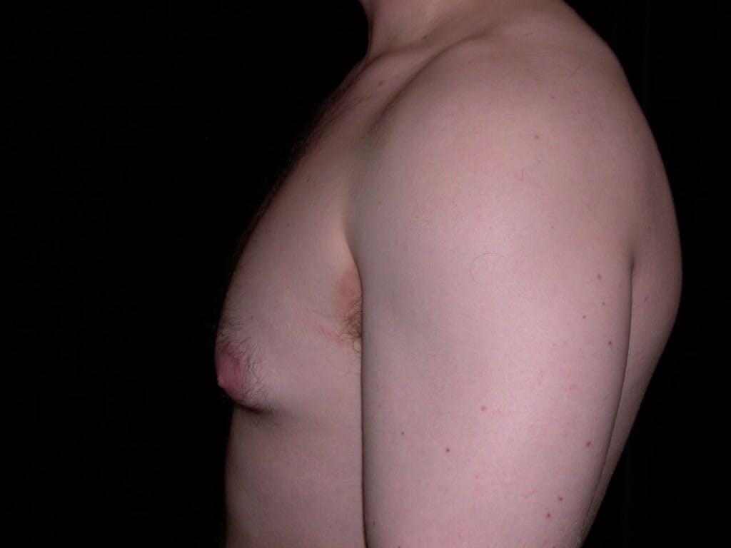 Gynecomastia Gallery - Patient 39352604 - Image 9