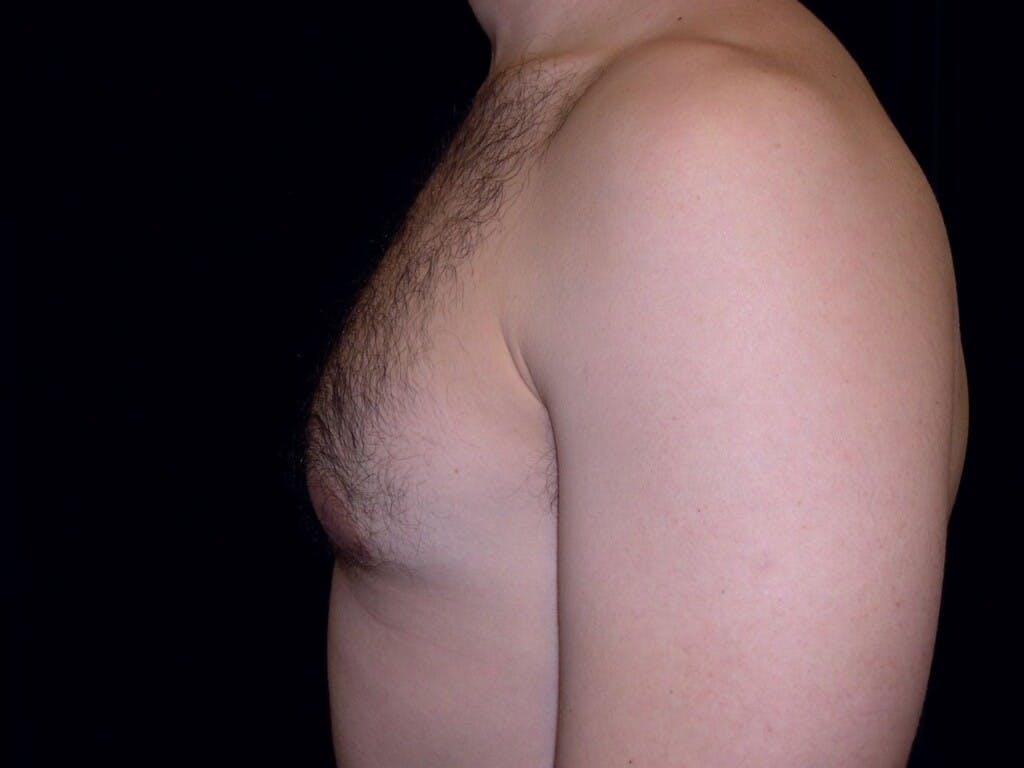 Gynecomastia Gallery - Patient 39352604 - Image 10