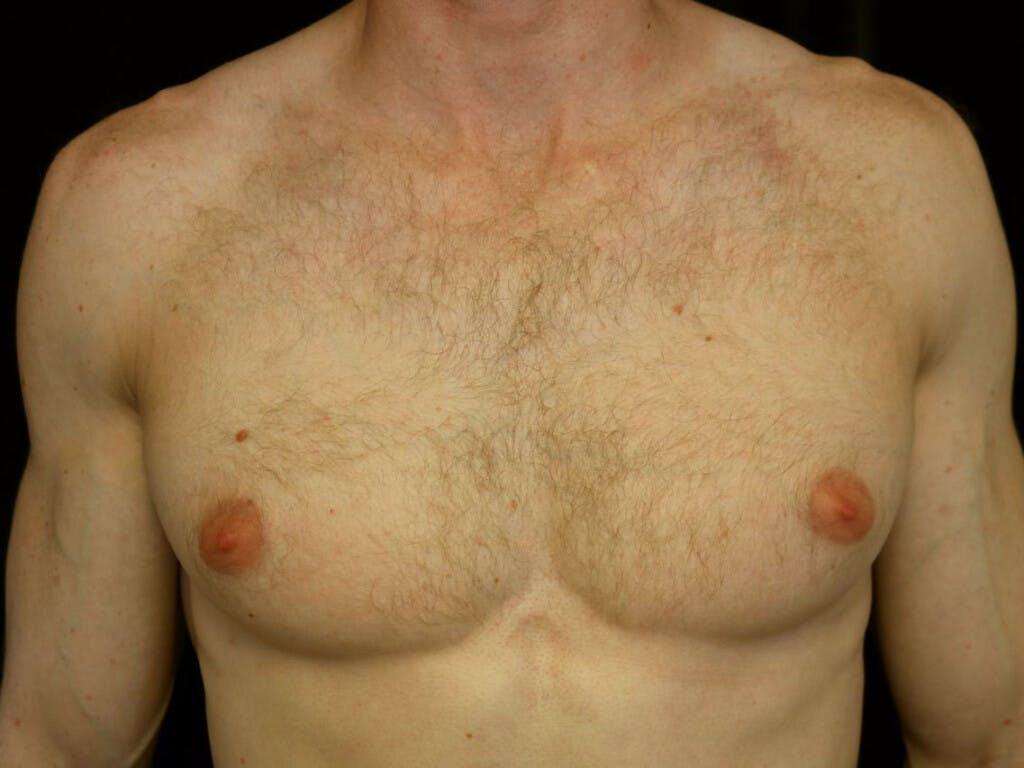 Gynecomastia Gallery - Patient 39352618 - Image 1