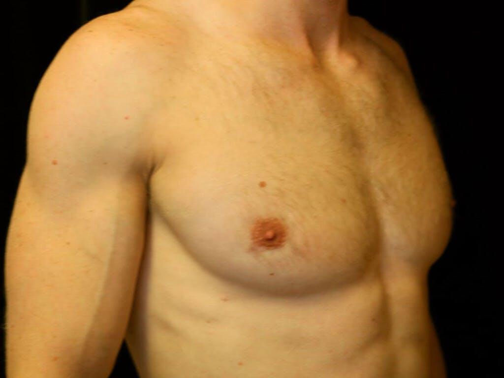 Gynecomastia Gallery - Patient 39352618 - Image 4