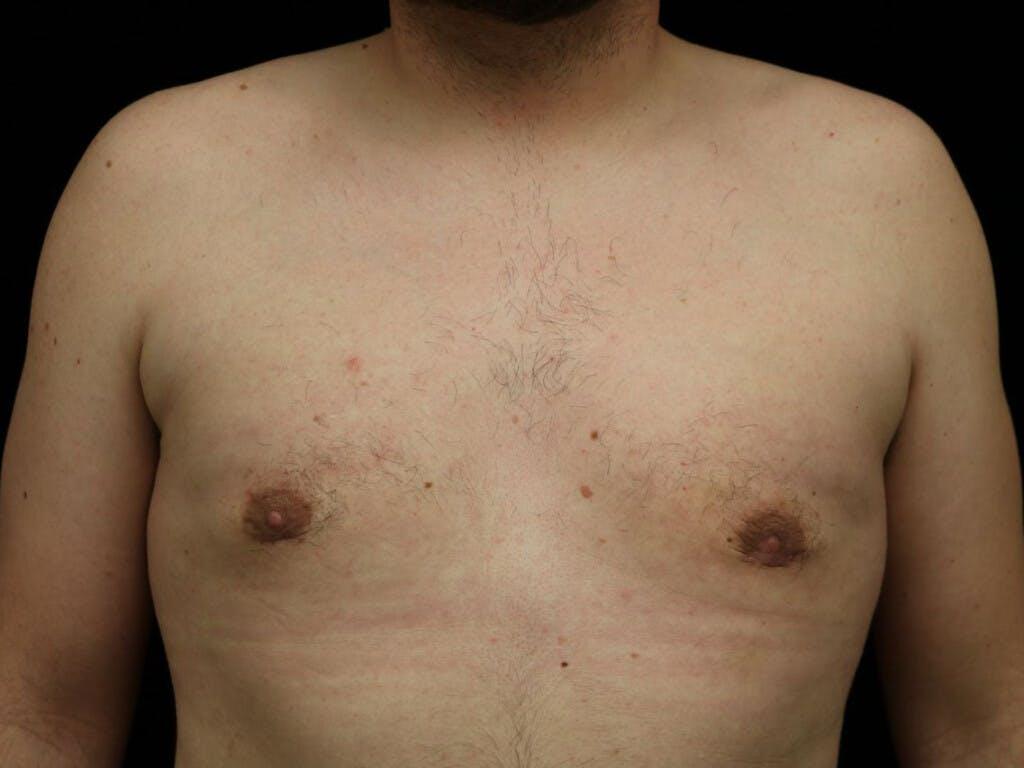 Gynecomastia Gallery - Patient 39352621 - Image 2