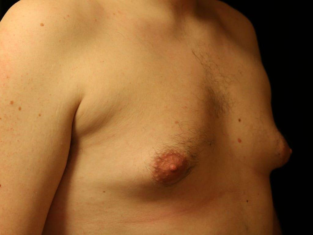 Gynecomastia Gallery - Patient 39352621 - Image 3