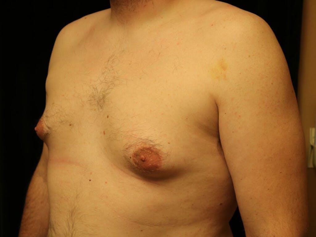 Gynecomastia Gallery - Patient 39352621 - Image 7