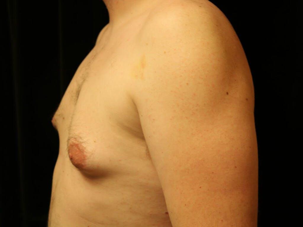 Gynecomastia Gallery - Patient 39352621 - Image 9