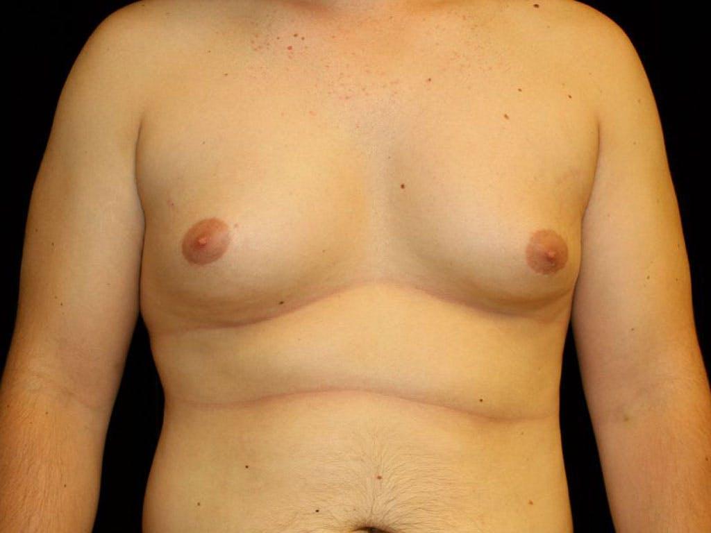 Gynecomastia Gallery - Patient 39352624 - Image 1