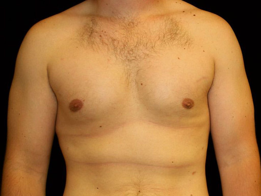 Gynecomastia Gallery - Patient 39352624 - Image 2