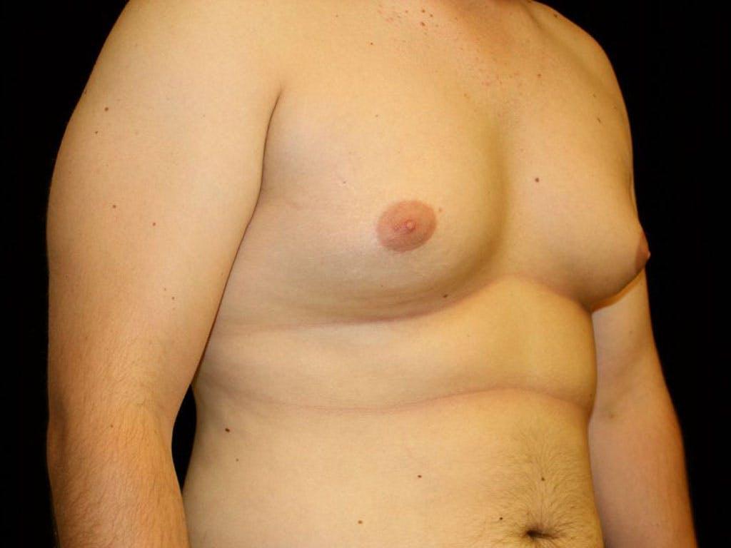 Gynecomastia Gallery - Patient 39352624 - Image 3