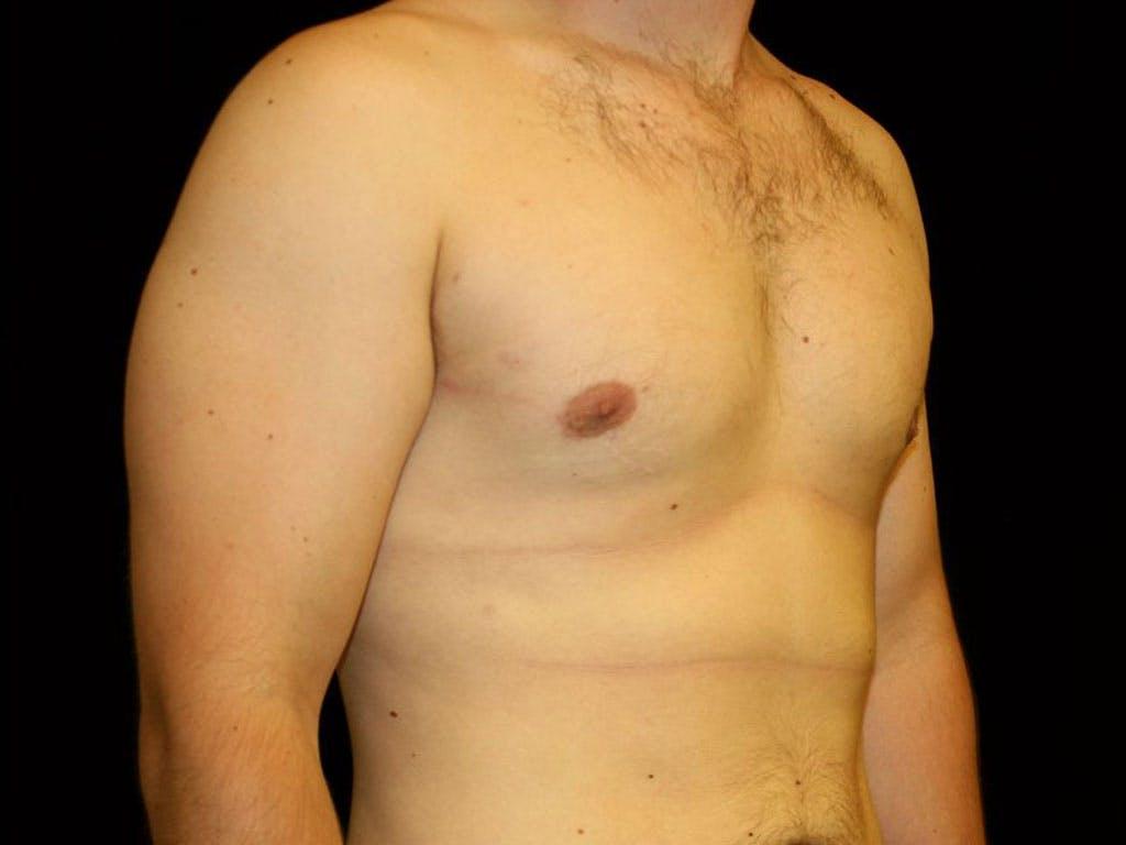 Gynecomastia Gallery - Patient 39352624 - Image 4