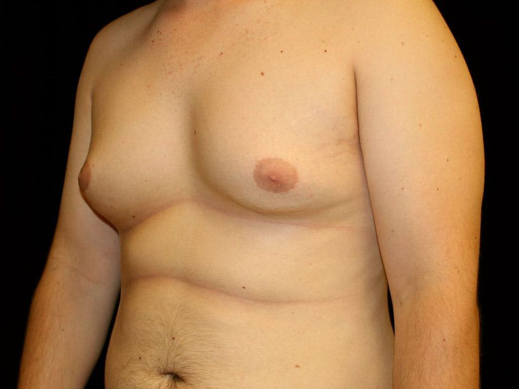 Gynecomastia Gallery - Patient 39352624 - Image 5