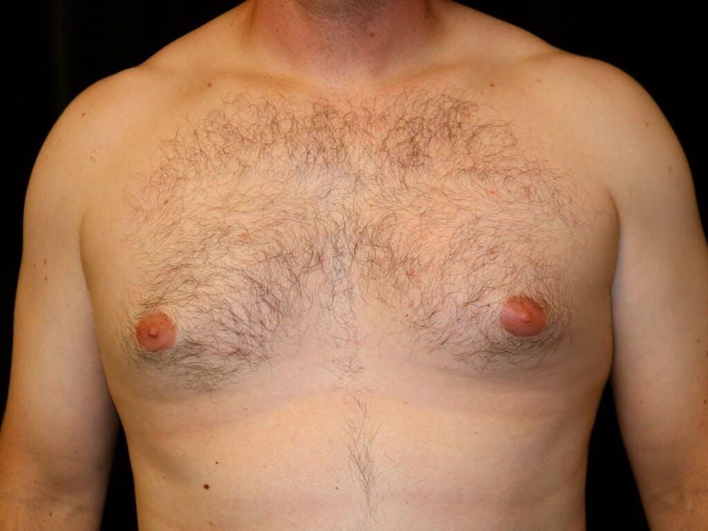 Gynecomastia Gallery - Patient 39352636 - Image 1