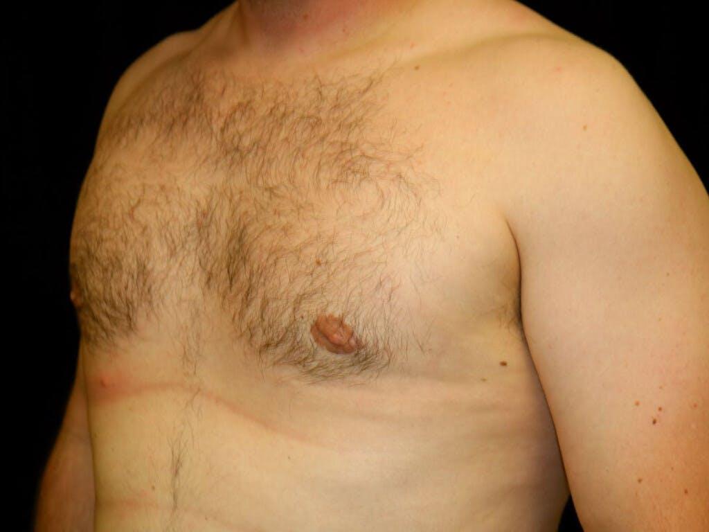 Gynecomastia Gallery - Patient 39352636 - Image 8