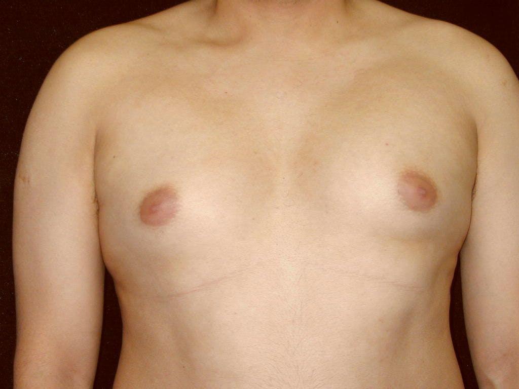 Gynecomastia Gallery - Patient 39352644 - Image 1
