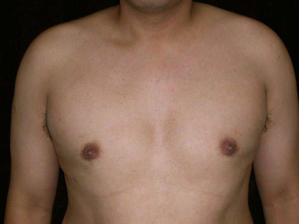 Gynecomastia Gallery - Patient 39352644 - Image 2
