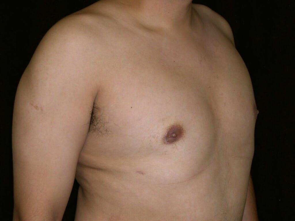 Gynecomastia Gallery - Patient 39352644 - Image 4
