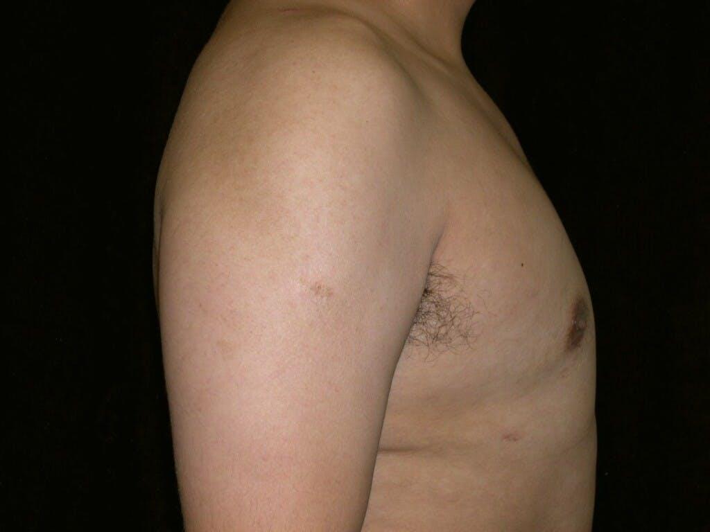 Gynecomastia Gallery - Patient 39352644 - Image 6
