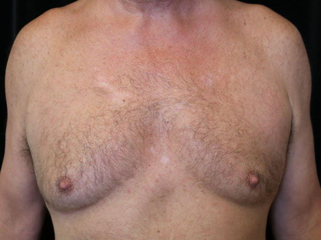Gynecomastia Gallery - Patient 39352645 - Image 1
