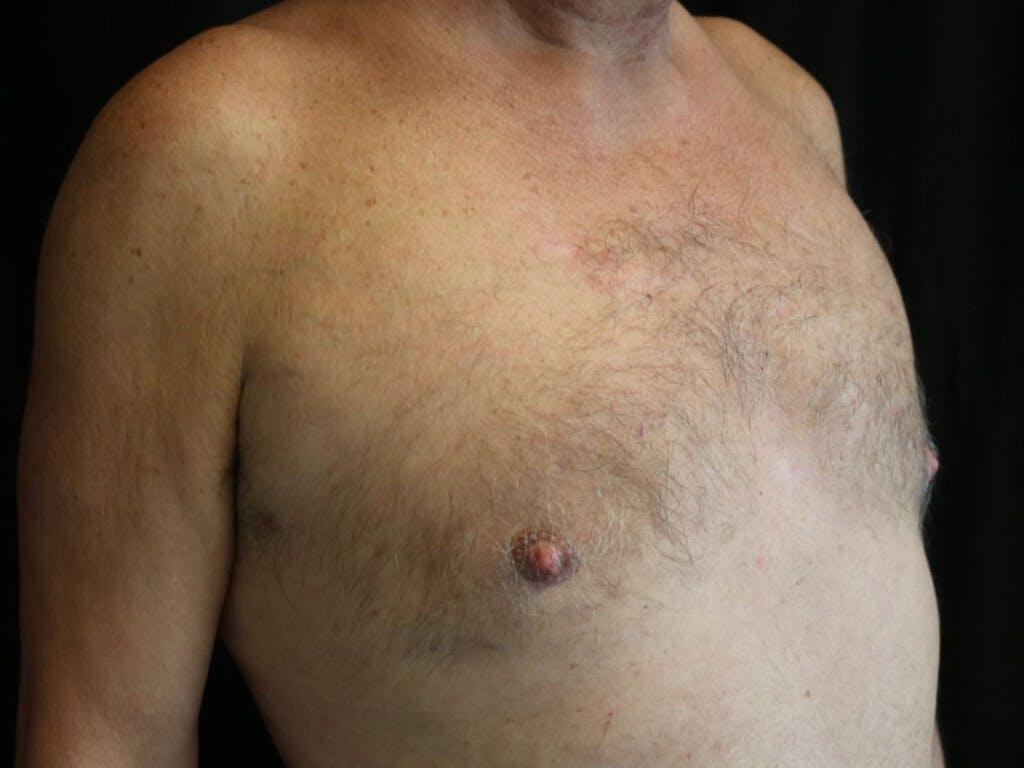 Gynecomastia Gallery - Patient 39352645 - Image 4